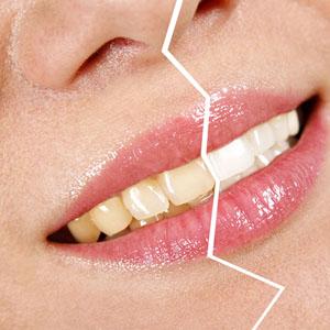 Lo sbiancamento dentale è realtà